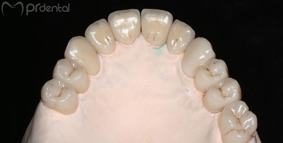 Zirconia Dentale